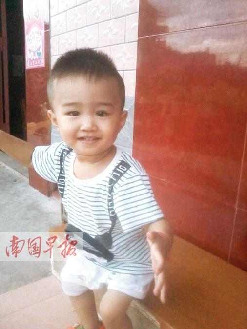 广西:两岁男童患怪病浑身变绿 疑为胆管阻塞所致