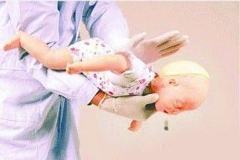 亲友执意喂食 1岁半幼女核桃仁卡住喉咙险窒息