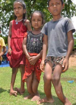 印度多名村民氟中毒 下肢严重弯曲触目惊心