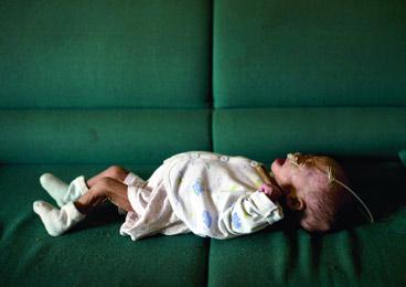 深圳小女婴患上罕见病 一年仅长了0.1斤