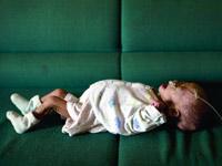 深圳小女婴一年仅长0.1斤
